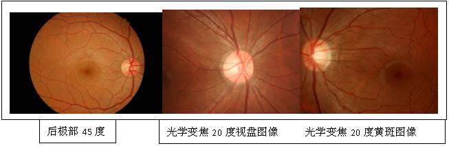 正常眼底图 正常眼底图像 正常眼底照相图片